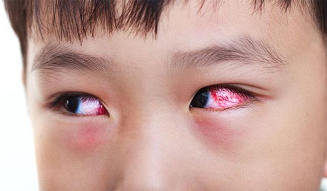 Bệnh sụp mi dễ dàng phát hiện và điều trị