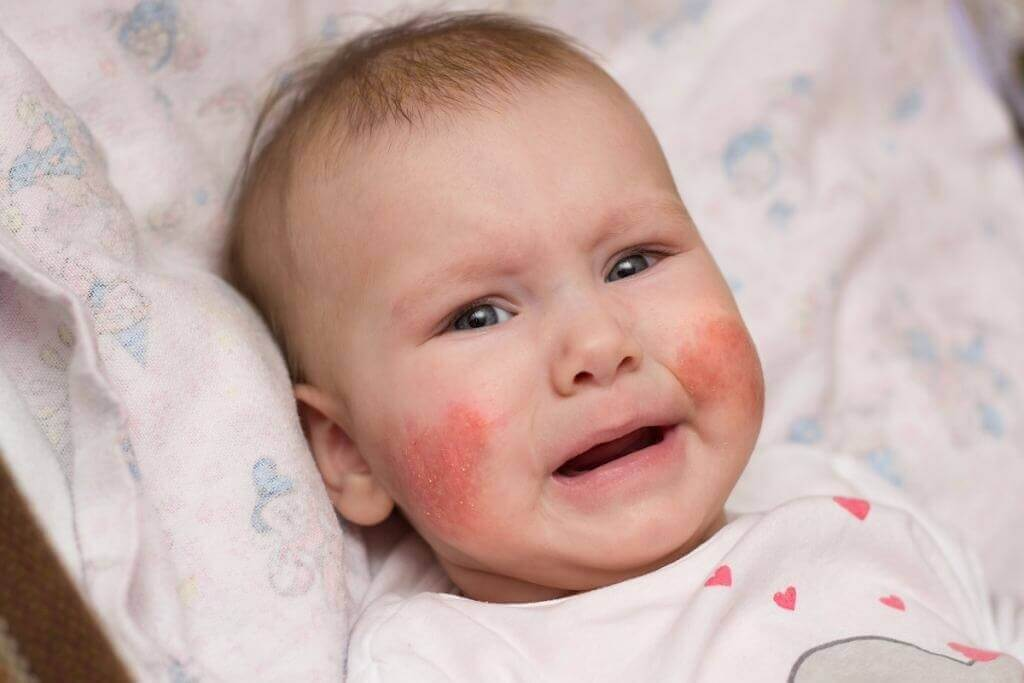 Bệnh chàm sữa khiến trẻ ngứa ngáy, khó chịu và quấy khóc