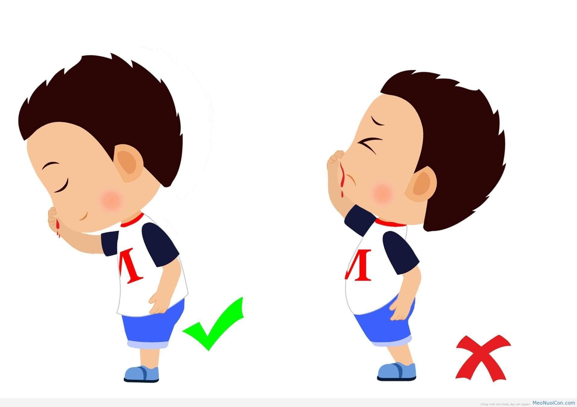 Đặt trẻ đúng tư thế để cầm máu hiệu quả