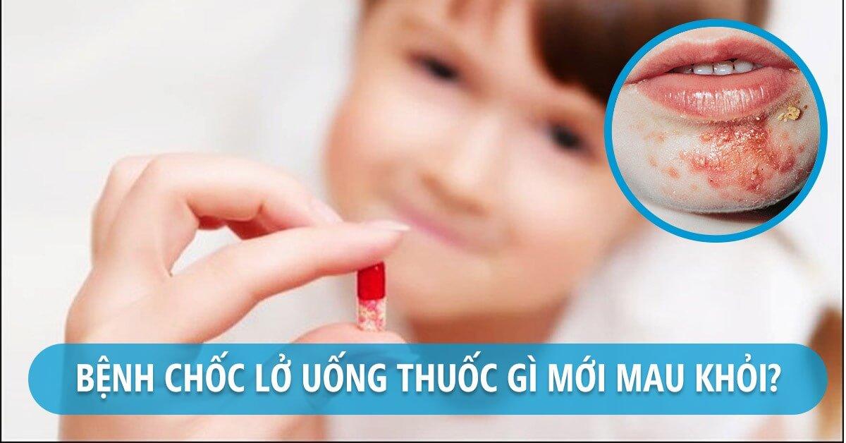 Thuốc và kem bôi cho trẻ trị chốc lở đều phải có chỉ định từ bác sĩ