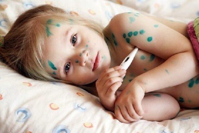 Trẻ nhỏ dễ bị bệnh các bệnh về da liễu
