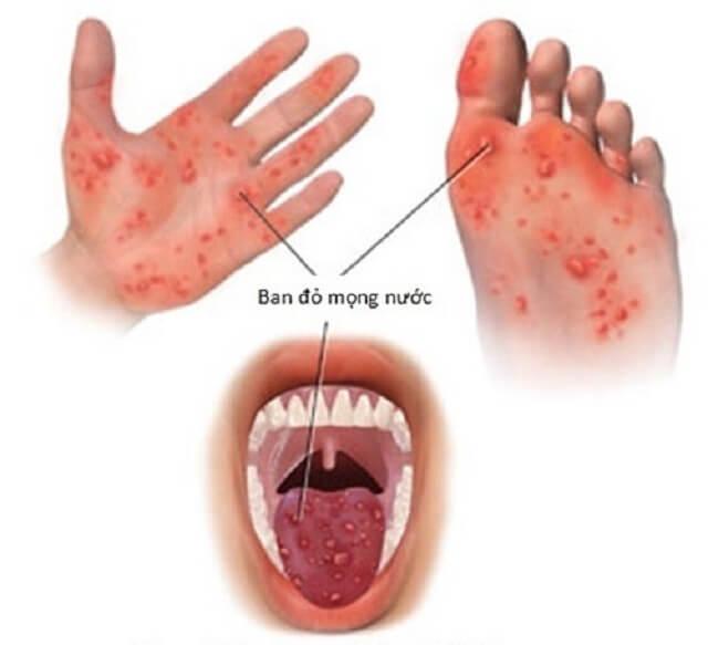 Biểu hiện bệnh tay chân miệng