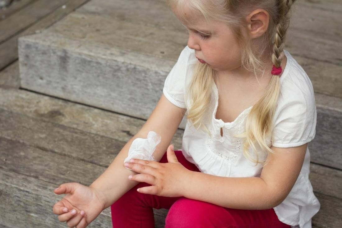 Các loại kem hay thuốc thoa ngoài da đều cần tư vấn từ bác sĩ