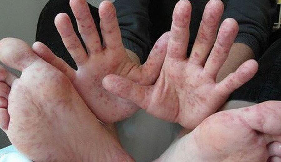 Bệnh ghẻ nước ở trẻ em rất phổ biến