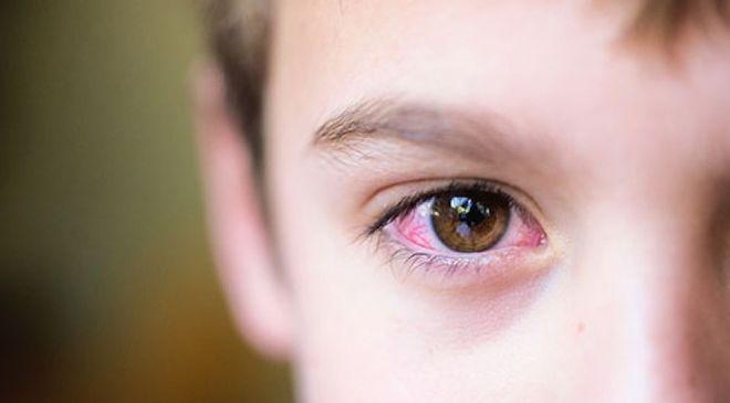 Việc cha mẹ trang bị các kiến thức về dấu hiệu về bệnh khô mắt ở trẻ em rất cần thiết