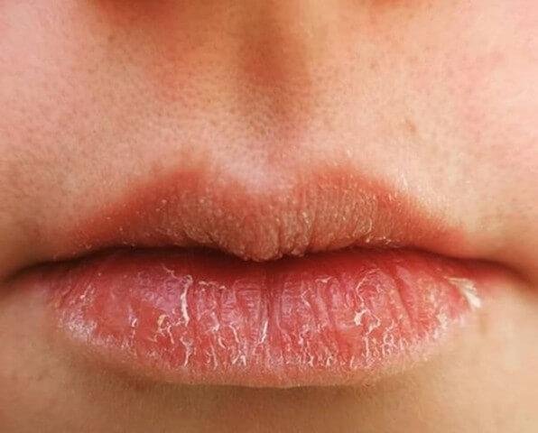 Làn da quá nhạy cảm cũng là nguyên nhân khiến trẻ bị khô môi