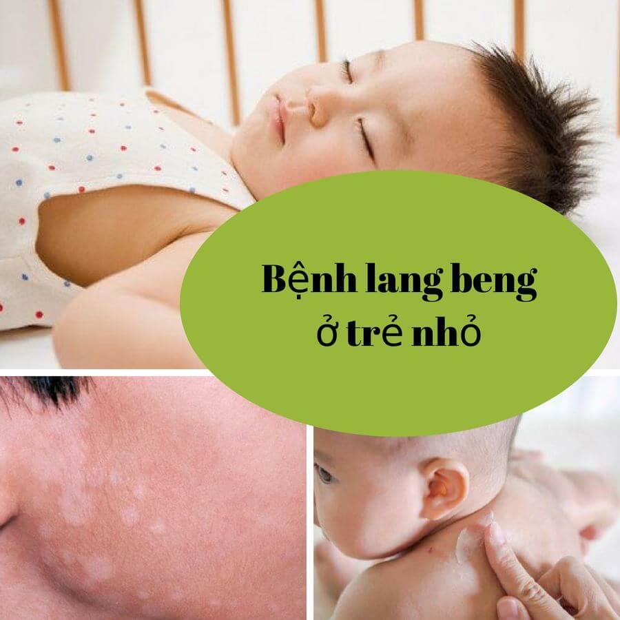 Bật mí cách chữa bệnh lang trắng ở trẻ em hiệu quả