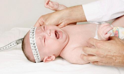 Não úng thủy là căn bệnh thường xuất hiện nhiều ở trẻ nhỏ