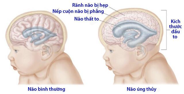 Hình ảnh mô tả trẻ bị não úng thủy đầu sẽ to hơn bình thường
