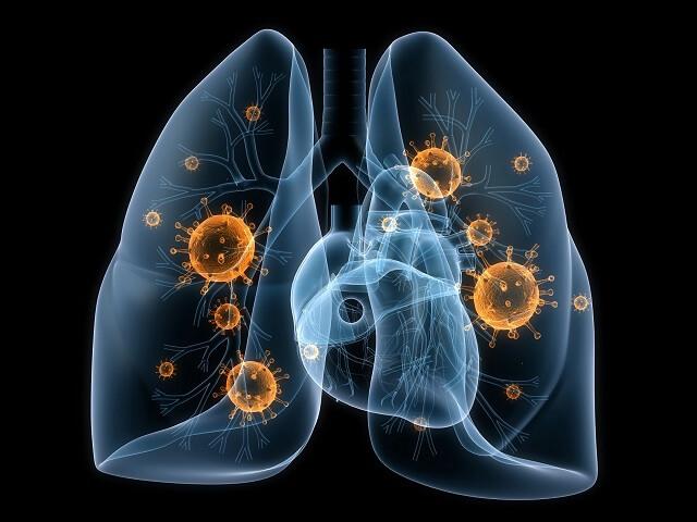 Viêm phổi mang những biến chứng khó lường