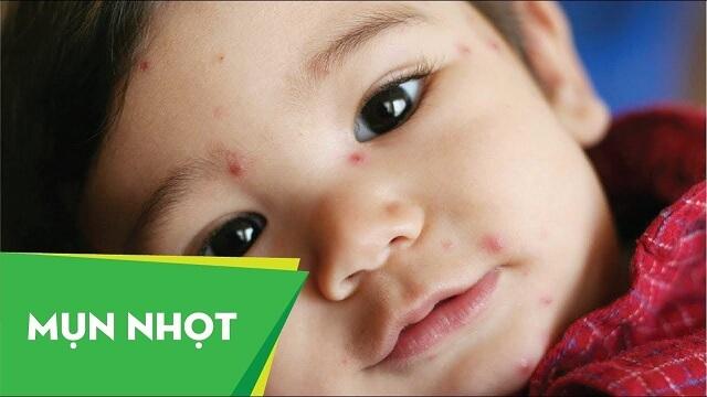 Mụn nhọt là biểu hiện của nhiễm trùng da