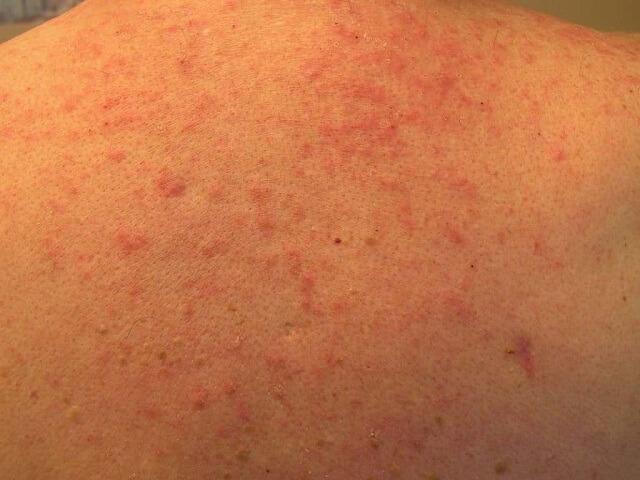 Bệnh viêm nang lông