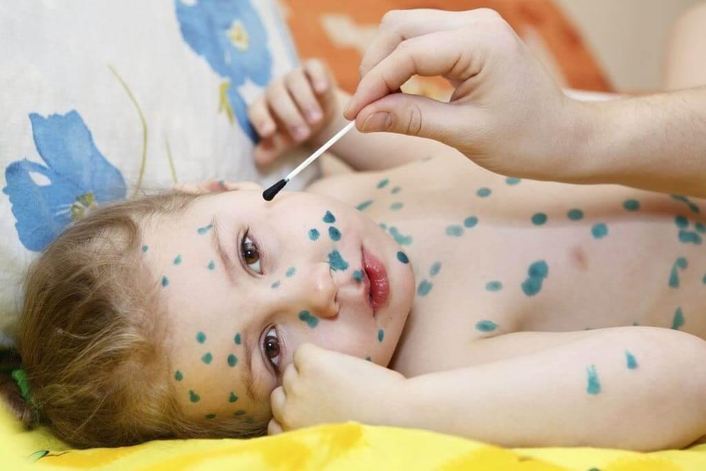 Thuốc xanh bôi ngoài da Methylen được dùng để sát khuẩn mụn phỏng rạ