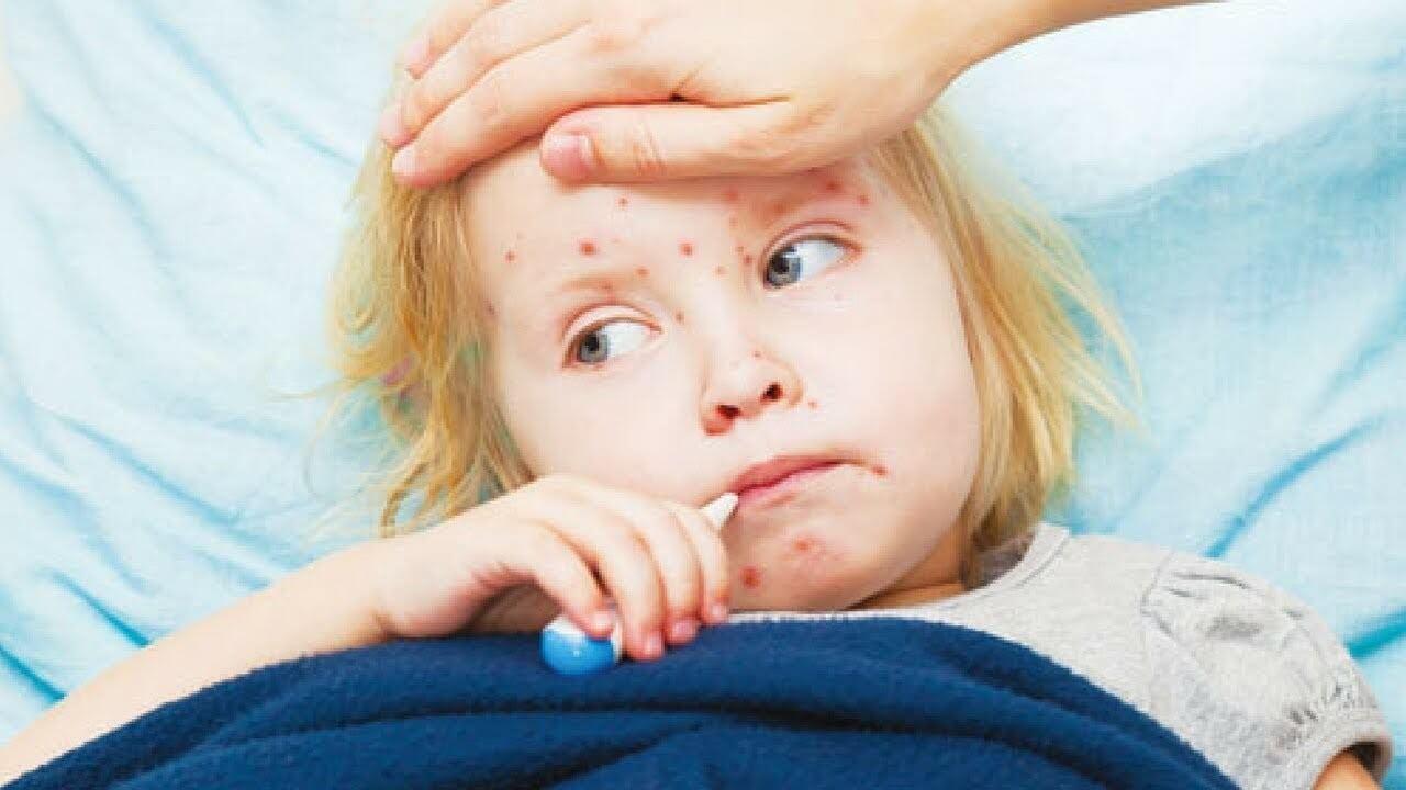 Khi bé bị sởi, mẹ nên thường xuyên theo dõi tình trạng của con để hỗ trợ điều trị kịp thời