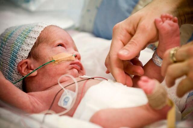 Trẻ sinh thiếu tháng cũng dễ mắc phải căn bệnh này