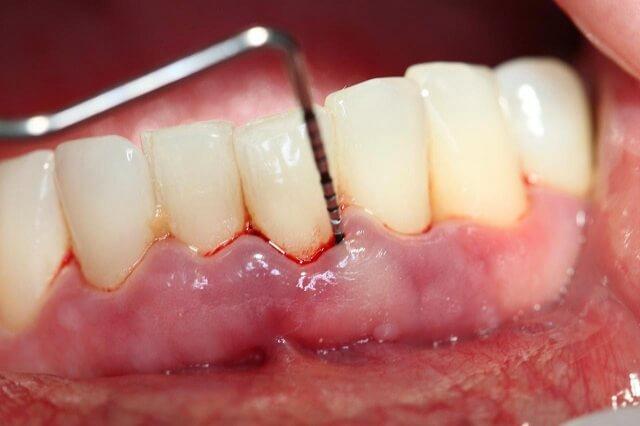 Chảy máu chân răng có thể là biểu hiện của căn bệnh thiếu tiểu cầu
