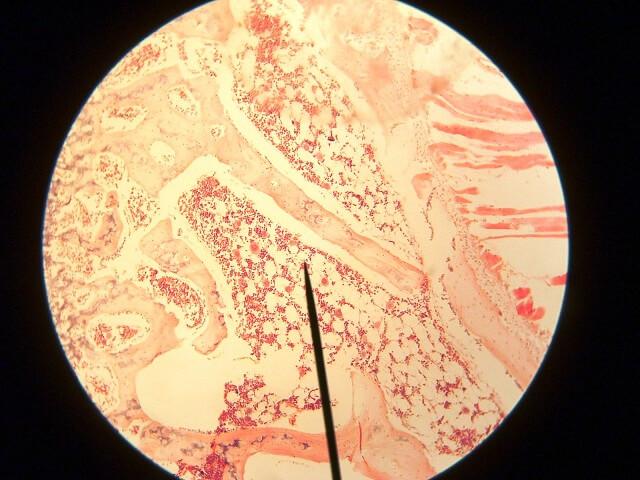 Tủy xương có chức năng sản sinh ra tiểu cầu