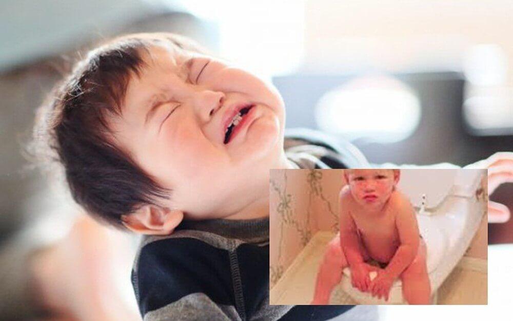 Táo bón kéo dài là nguyên nhân dẫn đến bệnh trĩ ở trẻ em