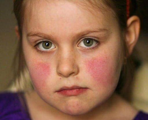 Bé gái có nguy cơ mắc bệnh cao hơn so với bé trai