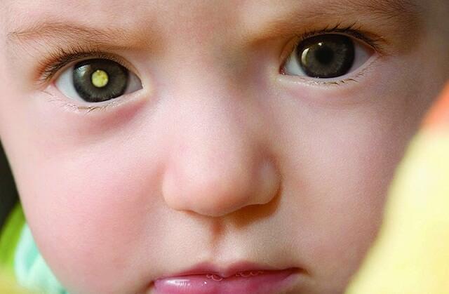 Lác là căn bệnh hay gặp ở trẻ