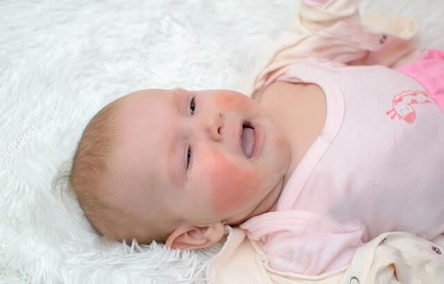 Viêm da cơ địa khiến trẻ ngứa ngáy khó chịu