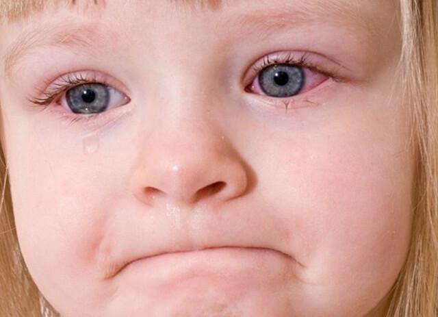 Bệnh viêm kết mạc gặp nhiều ở trẻ em