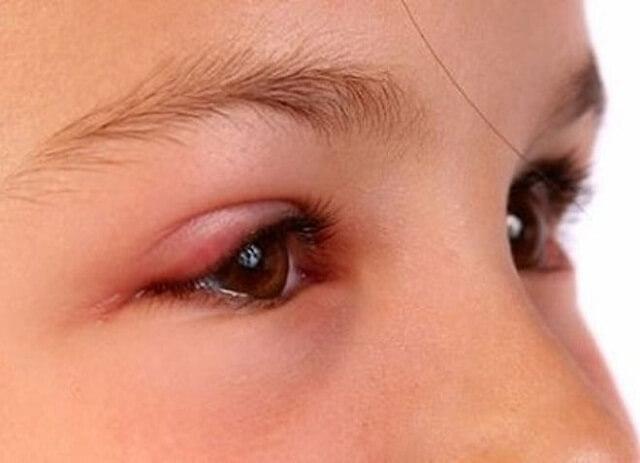 Trẻ sẽ có dấu hiệu sưng, cộm ở mắt