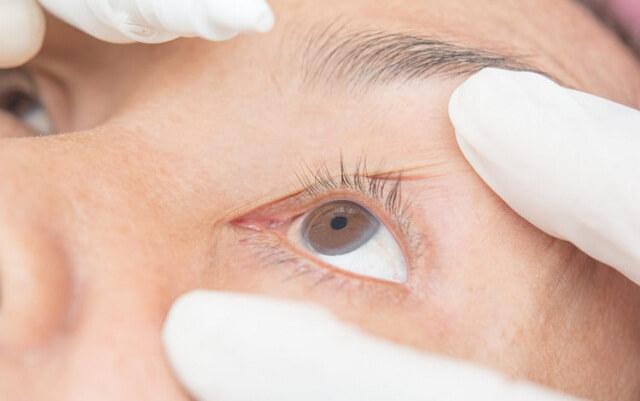 Viêm kết mạc sẽ làm giảm thị lực