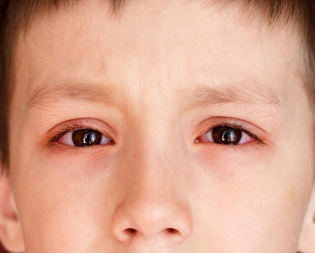 Mắt trẻ bị đỏ và có thể xảy ra ở cả 2 mắt