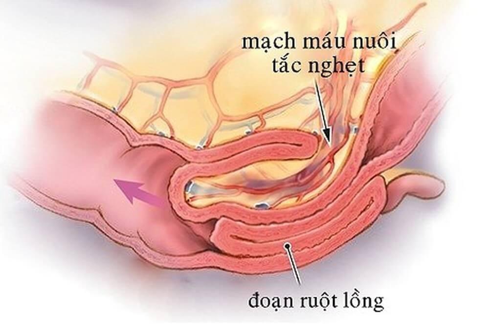 Bụng to bất thường ở trẻ cũng có thể là dấu hiệu của lồng ruột rất nguy hiểm