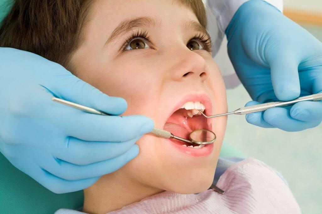 Một số trẻ bị vấn đề viêm loét miệng do vệ sinh chưa sạch sẽ khoang miệng sau ăn