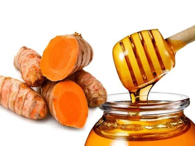 Mật ong và nghệ giúp đẩy nhanh quá trình lành vết thương