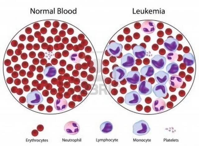 Hình ảnh của ung thư máu