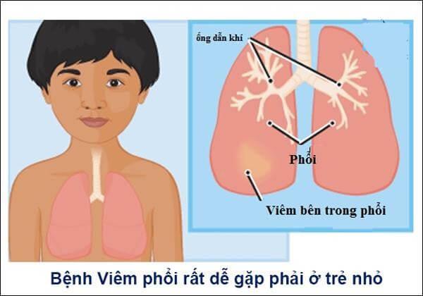 Trẻ dưới 3 tháng tuổi bị viêm phổi phải cho nhập viện gấp