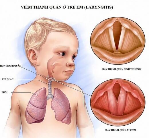 Một số bệnh viêm đường hô hấp ở trẻ cũng gây khó thở