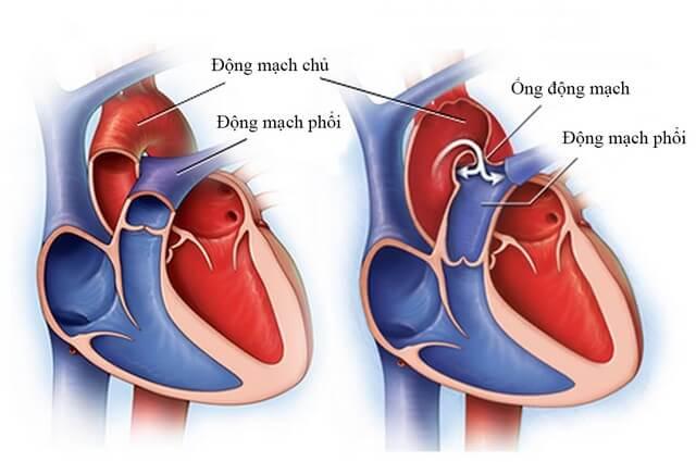 Trẻ bị suy tim thường xuyên bị khó thở