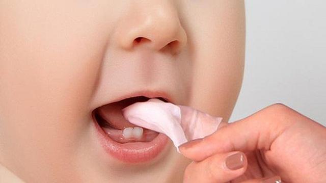 Có thể điều trị nấm miệng cho trẻ bằng cách rơ lưỡi với nước muối