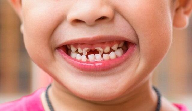 Trẻ bị sâu răng thường là do ăn nhiều đồ ngọt